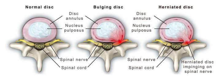 Image shows a normal disc, a bulging disc and a herniated disc